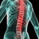 Диагностика и лечение позвоночника и суставов | Центр «АТЛАНТ ПЛЮС» в Запорожье